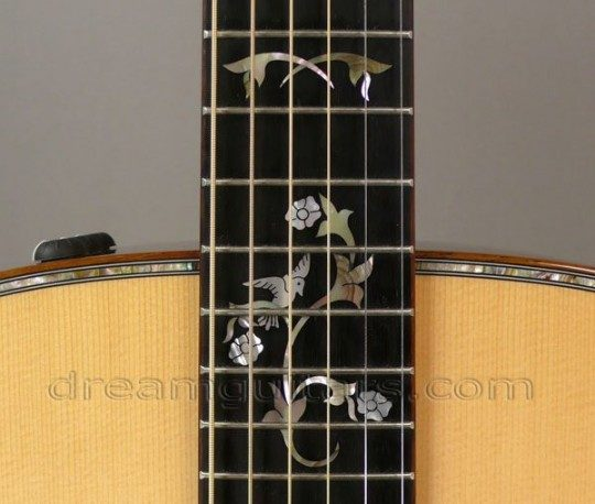 Custom Inlays Inlay